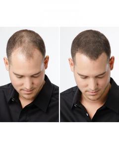 Hair Building Fiber & Hair Concealer
